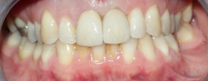 3 implant after