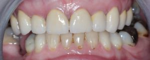 2 crowns after